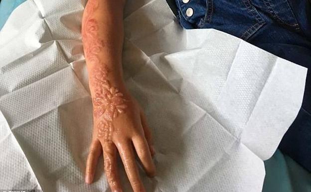 Un Tatuaje De Henna Le Destroza El Brazo A Una Niña De 7 Años El