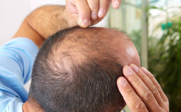 La alopecia androgenética (AGA) es la forma más común de pérdida de cabello entre los hombres. /