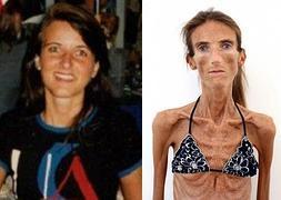 Valeria Levitina Pesa 25 Kilos Y Es La Mujer Más Delgada Por